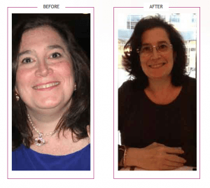 156_Mindy Lost 70 lbs