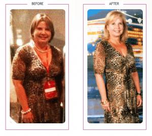 157_Mireya A. Lost 33 lbs