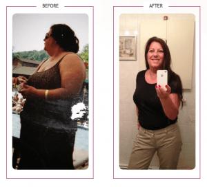 028_Bernadette D. Lost 77 lbs