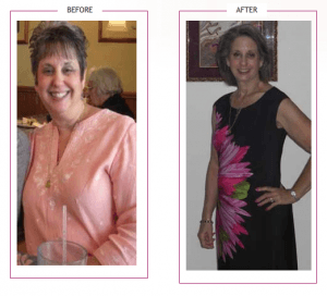 041_Cathy O. Lost 72 lbs