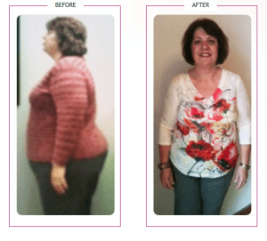 058_Diane Lost 83 lbs