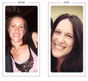 066_Elizabeth Lost 115 lbs