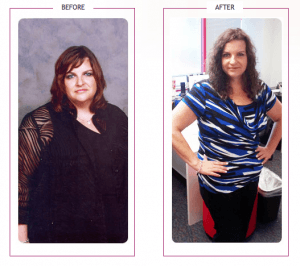 203_Stephanie S. lost 125 lbs
