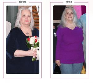 221_Vicki T. Lost 75 lbs